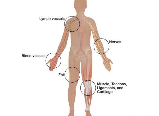MyPartSoftTissueSarcoma-enlarge