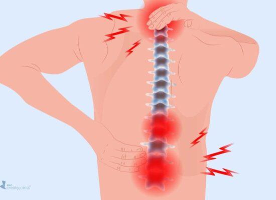 arthritis in the back
